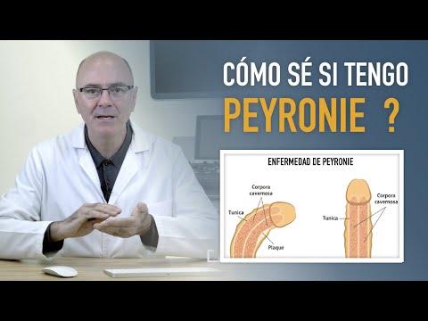 Debole erezione medico