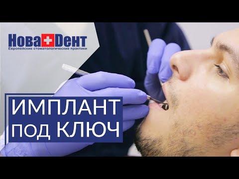 🔑  Что включает в себя имплантация зубов под ключ. Имплантация зубов под ключ. НоваДент. 12+