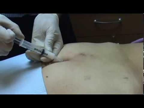 La prevalencia de la artrosis de rodilla