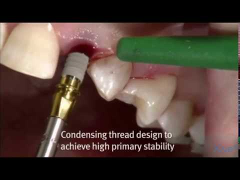 Xive™ 3.0 mm implant for narrow gaps | Dentsply Sirona