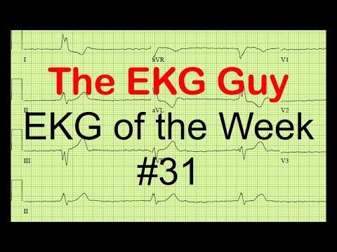 EKG of the Week #31