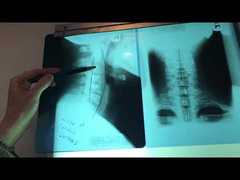 Artritis de cadera en niños provoca tratamiento