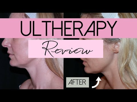 Ultherapy | Non-Invasive Face Lift Treatment | Review | BusbeeStyle TV