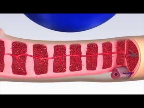 Корень калгана лечение простатита