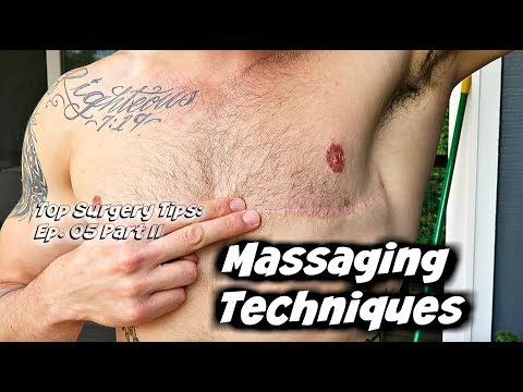 Top Surgery Tips Ep. 05: Part II- Scar Creams & Massage