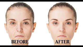 Secret To Look 10 Years Younger Than Your Age | How To Get Youthful Skin Naturally | Homemade Remedy