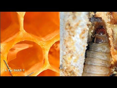 Что такое макрофаги в секрете предстательной железы