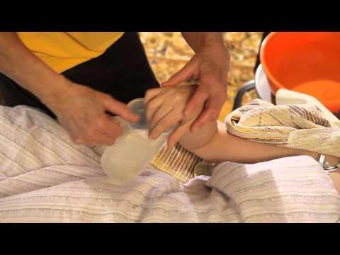 Kegel módszer a prosztatagyulladásra