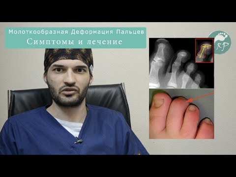 Молоткообразная Деформация пальцев обо вссем
