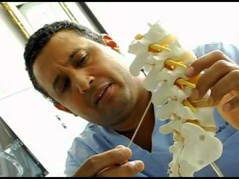 Traducción de hernia intervertebral