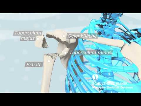 Rückenschmerzen im unteren Bereich des Kreuzbeins