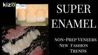 スーパーエナメルは審美歯科治療の最高峰