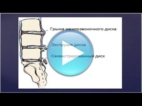 Einige Medikamente machen die Blockade für Schmerzen im Rücken
