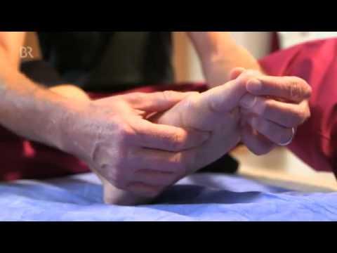 Varus ผ่าตัดเท้าผิดปกติ