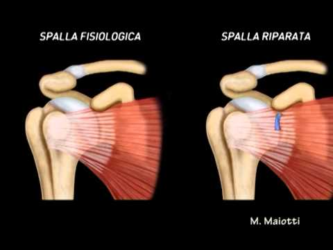 Osteocondrosi complesso del rachide cervicale