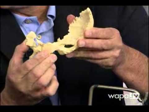 Ejercicios para desarrollar las articulaciones después de la eliminación de yeso
