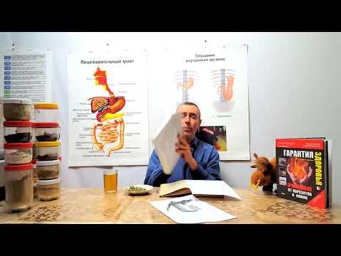 Способ лечение цирроза печени у