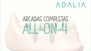 All on 4 Clínica Dental Adalia