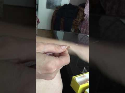 Protéines dans lurine dune femme enceinte souffrant de diabète