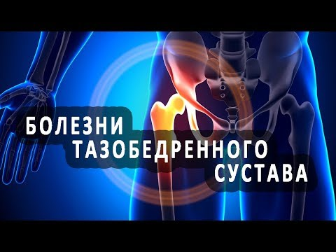 Если острая боль в тазобедренном суставе