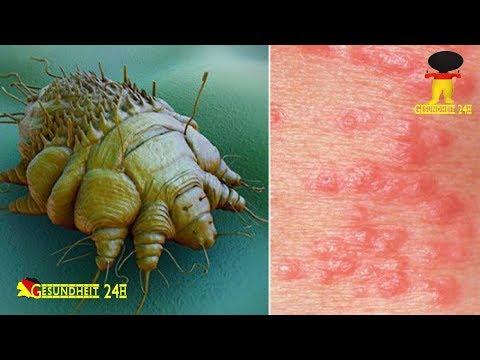 Die Mitteilung von den Pilzen die Parasiten wikipedija