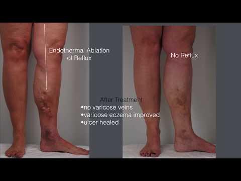 Cura per dermatite atopic al bimbo
