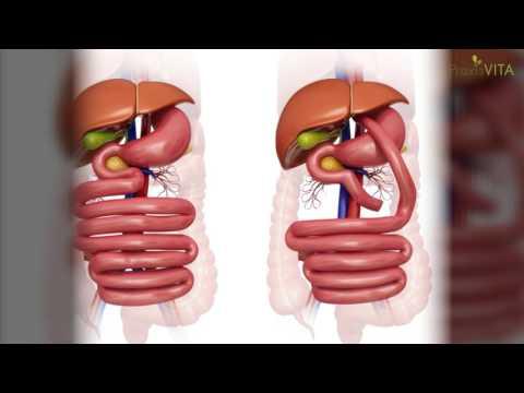 Bei Diabetes in der Schwangerschaft Schwitzen