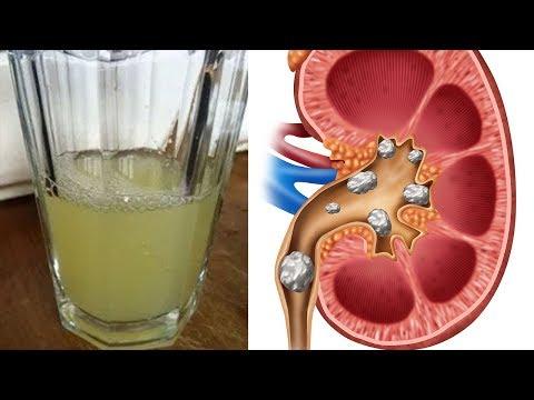 Welche Tabletten können mit Osteochondrose genommen werden