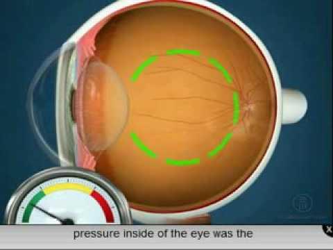 Operează miopia