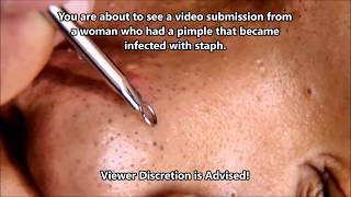 Staph Infected Zit Popped!  Popping, Zits, B12 & Blackheads