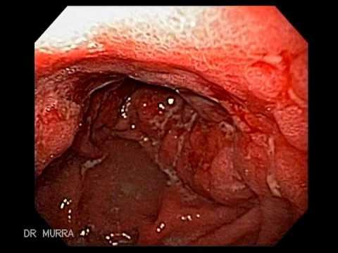 Naciekający rak żołądka