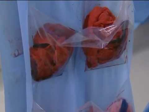 Dibdib pagpapaluwang capsules