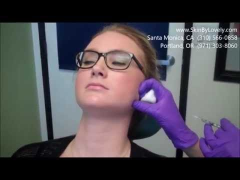 Treating Teeth Grinding and Masseter muscle with Botox   Holly Gruwell Buchko FNP   Skin by Lovely