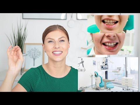 Všetko čo ste chceli vedieť o bielení zubov u zubára