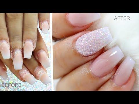 La reincidencia de la uña y su tratamiento