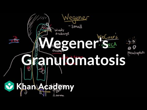 Video Wegener's granulomatosis and microscopic polyangiitis | NCLEX-RN | Khan Academy