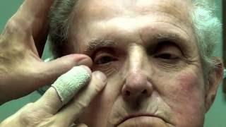 Magnetic Two-Piece Orbital (eye) Prosthesis