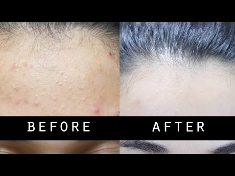 Video GET RID OF SMALL PIMPLES AND LIGHTEN SKIN NATURALLY FAST