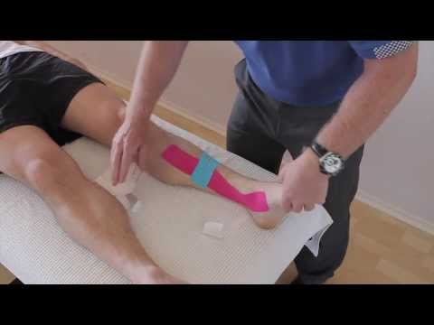 Video How to treat Shin Splints (Medial tibial stress Syndrome / Periostitis) with Kinesiology tape