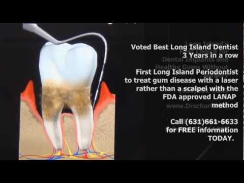 What is gum disease by Long Island NY periodontist