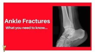 Medial Malleolar and Posterior Malleolar Fractures