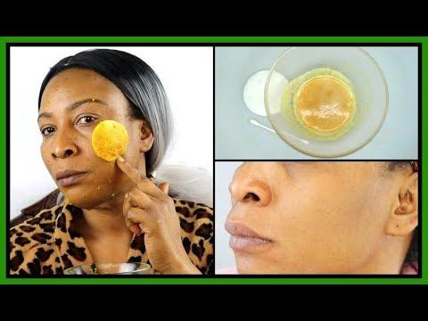 Barrier cream mula sa sunburn pigmentation at freckles comprises