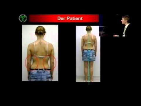 TB 500 von Osteochondrose