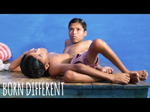 World Famous Conjoined Twins Turn 18   BORN DIFFERENT
