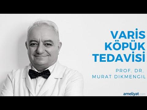 Varis Köpük Tedavisi (Prof. Dr. Murat Dikmengil)