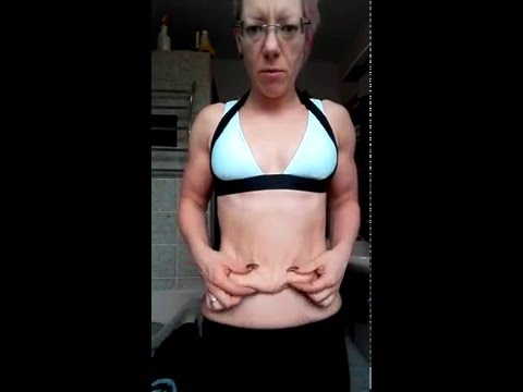 Hormonal die Gymnastik für die Abmagerung
