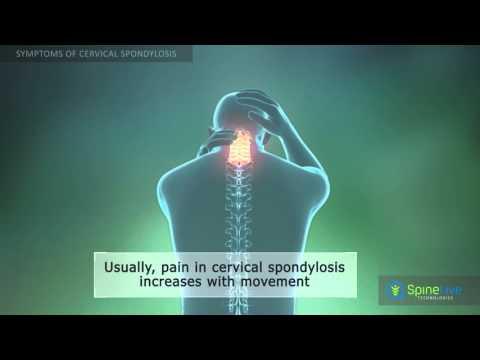 Artritisz boka kenőcs kezelése