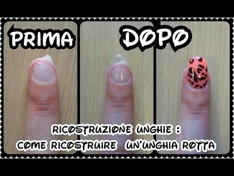 Il dermatovenerologist, che il fungo di piaceri di unghie