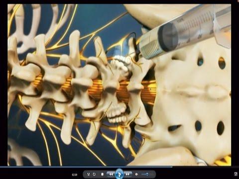 Възстановяване след операция за отстраняване на простатната жлеза