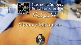 Mommy Makeover + Fat Transfer + Breast lift + Abdominoplasty - Dr. Jabor